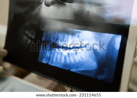 X-ray of the jaw - stock photo