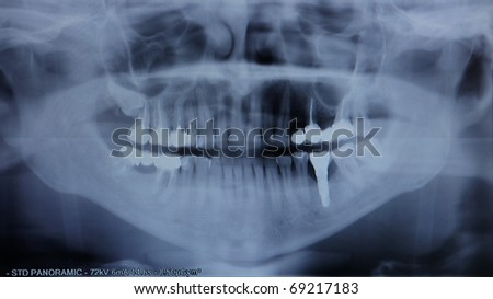 X-ray of the jaw close up - stock photo