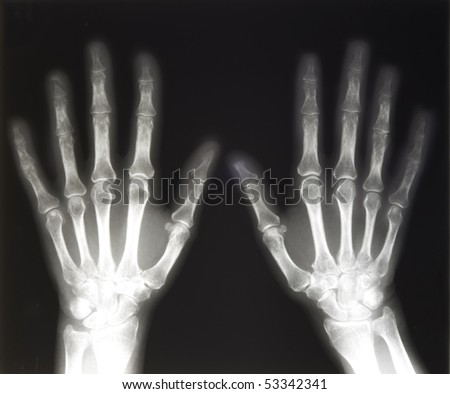 X-ray of two human hands, with space for copy - stock photo