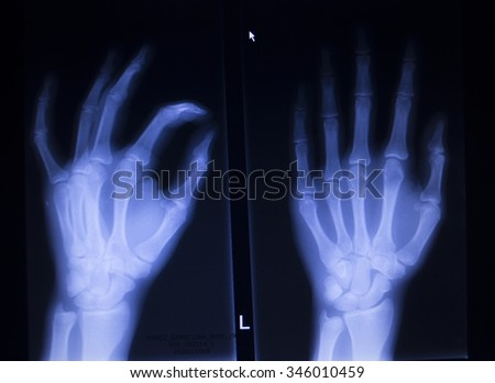 X-ray orthopedic medical CAT scan of painful hand fingers thumb injury in Traumatology hospital clinic. - stock photo