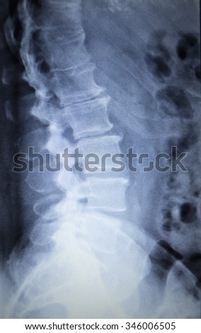 X-ray orthopedic medical CAT scan of painful lower back spine injury in Traumatology hospital clinic. - stock photo