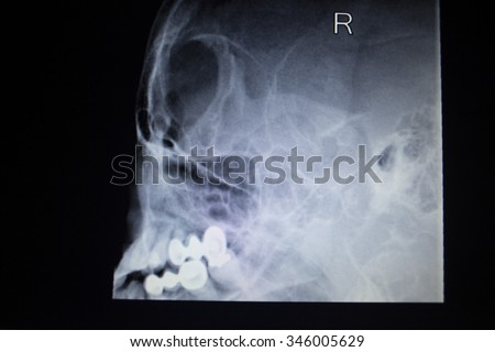 X-ray orthopedic medical CAT scan of painful nose injury breathing difficulties respiratory problems showing skull, head, face, mouth, jaw and teeth and dental fillings in Traumatology hospital clinic