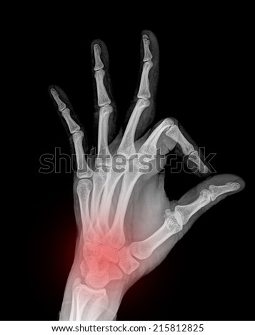 x-ray pain hand ( Hand Lateral ) on black background