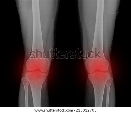 x-ray pain 2 knee joint ( Knee joint Antero-posterior )on black background - stock photo