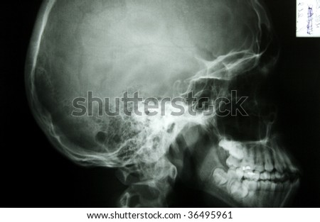 x-ray photo of a human skull, from profile - stock photo