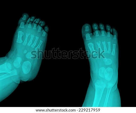 x-ray photo of baby feets - stock photo