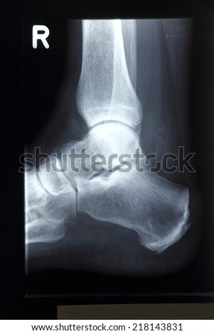 X-ray photograph, ankle - stock photo