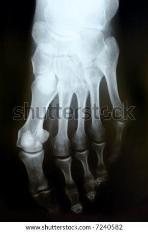 X-ray photograph of human foot