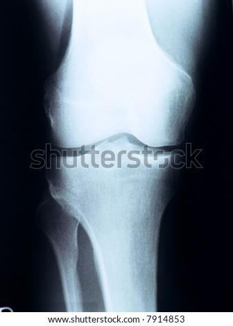 X-ray photography - stock photo