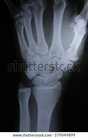X-ray photos of bone fracture patients