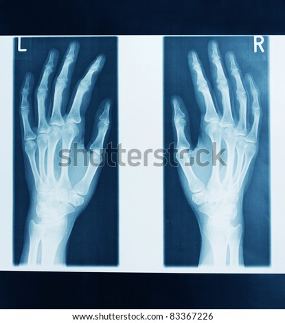 x-ray picture - stock photo