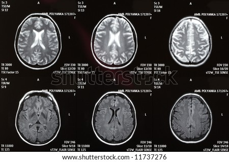 X-ray picture of a brain - stock photo