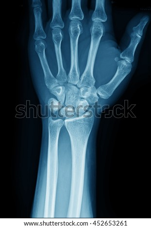 X-ray picture of hand - stock photo