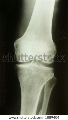 x-ray picture of the knee - stock photo