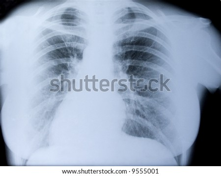 X-ray picture of the thorax of the woman