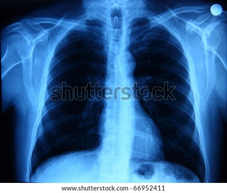 X-ray picture showing chest bones and lungs - stock photo
