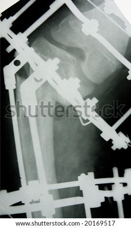 x-ray picture with metallic construction - stock photo