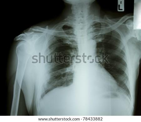 X-ray rib fracture - stock photo