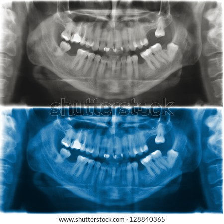 X-ray scan of the mandibular teeth. Panoramic negative image of the face of a young adult male.