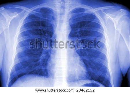X-ray showing a male's chest area with pneumonia case - stock photo