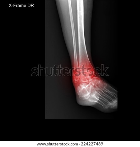 X-ray tarsal and ankle painful area - stock photo