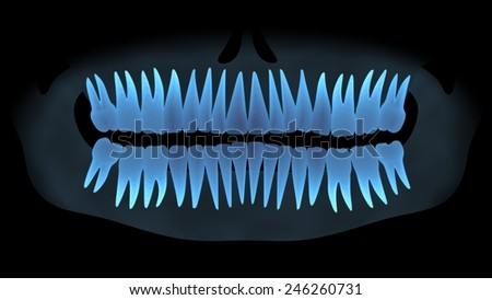 X-ray teeth front view. - stock photo