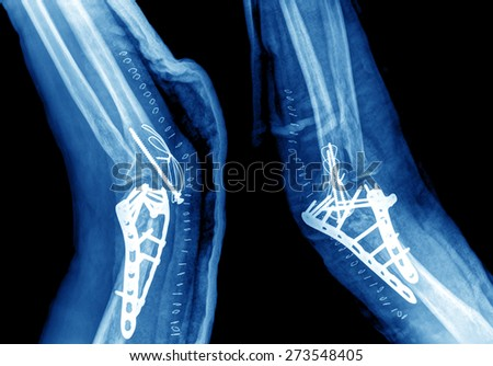 X-ray view of elbow  - stock photo