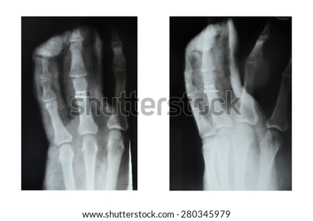 X-rayfractured ring finger hands, fractured ring finger hands