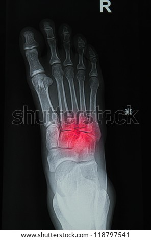 x-rays image of  the painful or injury foot - stock photo