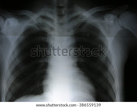 X-rays images in good quality / Fracture bone - stock photo