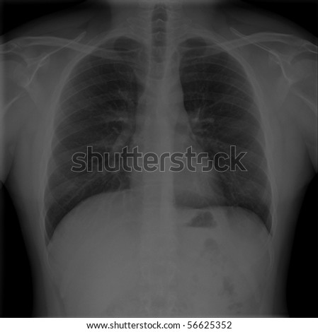 X-Rays of male chests and lungs taken from back - stock photo