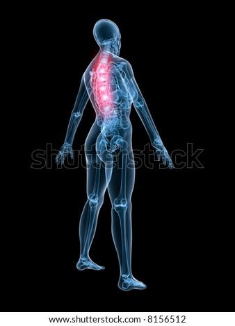 xray anatomy - backache - stock photo