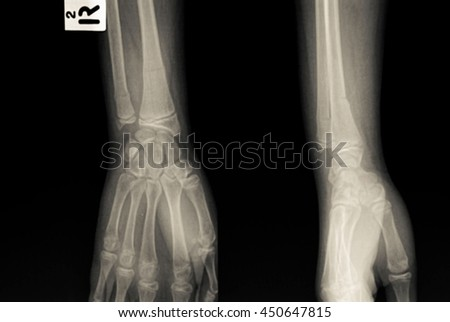 xray fracture distal radius - stock photo
