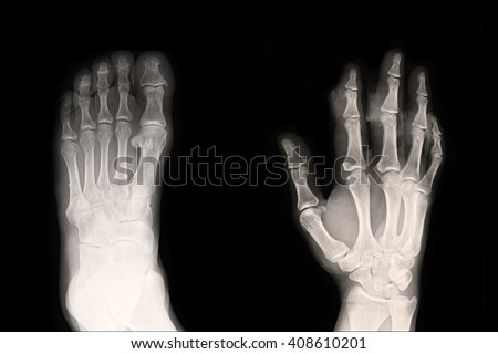 Xray hand and foot - stock photo