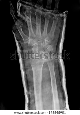 Xray imaging of epiphysial radial fracture of wrist reduced with permanent synthetic means