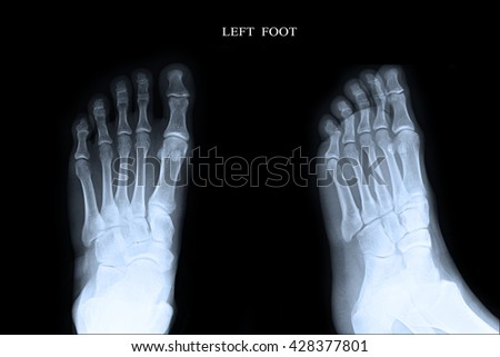 Xray Left Foot :AP,Lateral