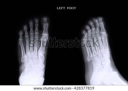 Xray Left Foot :AP,Lateral  - stock photo