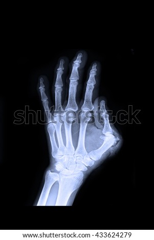 Xray left hand : show fracture thumb finger left hand