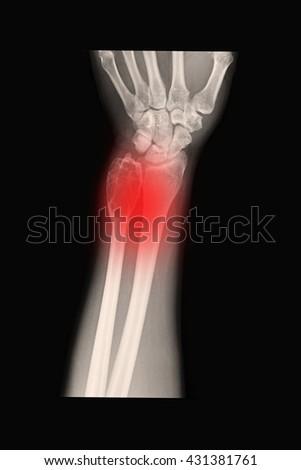 xray left wrist and abscess  - stock photo
