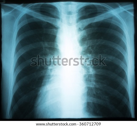 Xray of a human thorax (chest). - stock photo