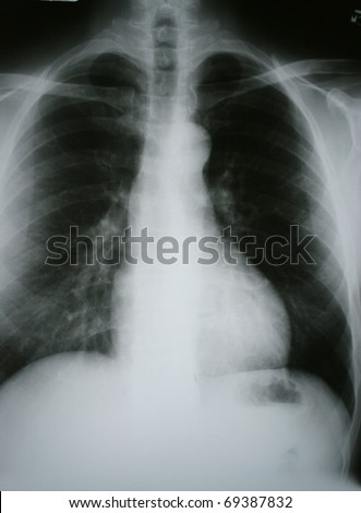 Xray of Chronic Obstructive Pulmonary Disease (COPD) with Lung Cancer in the Right Lung - stock photo