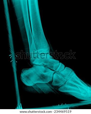 xray of feet side view with plast wood splint - stock photo
