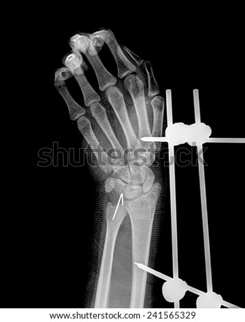 xray of fracture wrist and chronic infection. It was operated and external fixed by plate and screw - stock photo