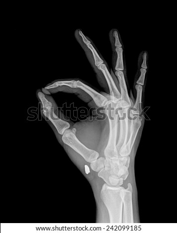 xray of hand in ok sign