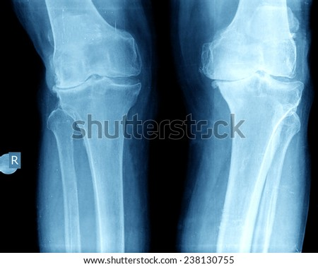xray of knee - stock photo