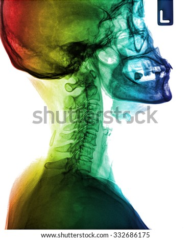 Xray of neck and cervical spine, Side view. - stock photo