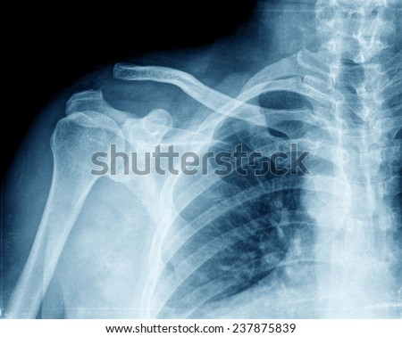xray of shoulder - stock photo