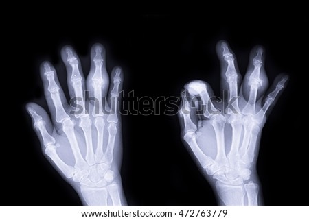 xray right hand AP, LAT  and show imframmstion at ring finger right