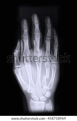 Xray right hand ; Show fracture middle finger right hand