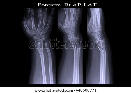 xray right hand : show fracture radius and ulnar right hand